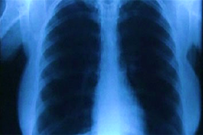 CT scans can exposes a patients to as much radiation as 250 - 450 chest X-rays.