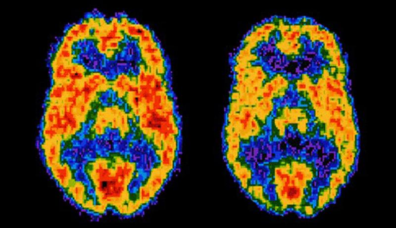PET Scan - Positron emission tomography