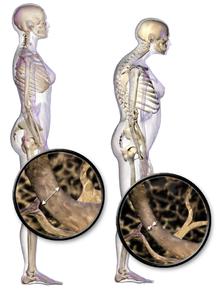 Body frame (x ray)